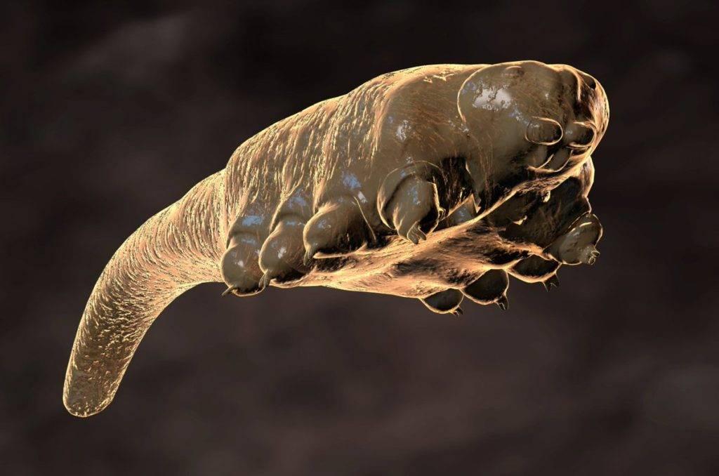 паразиты под кожей