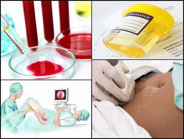 Цистит с кровью – симптомы, лечение, диагностика
