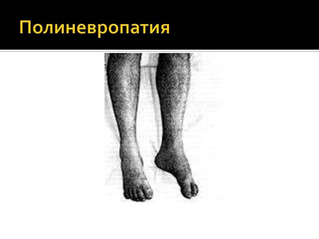 токсическая полинейропатия нижних конечностей лечение