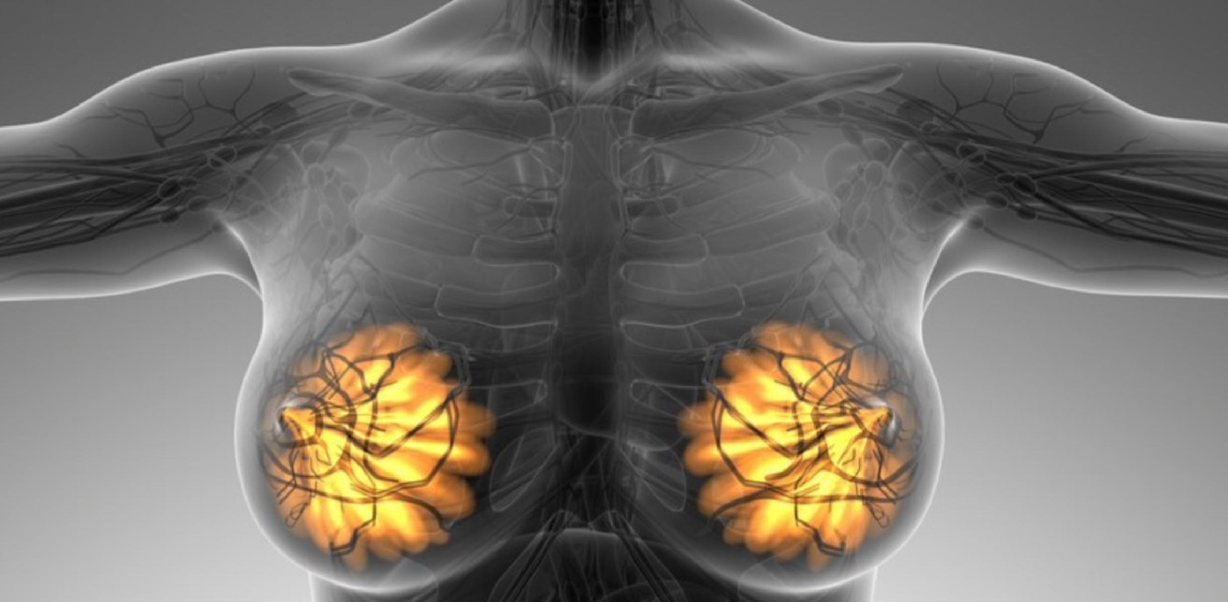 Гиперплазия молочной железы