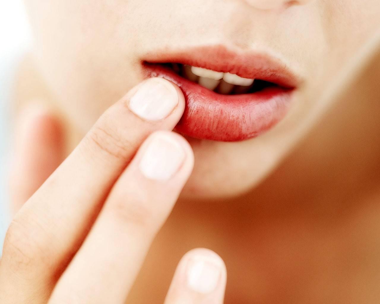 Питание при герпесе на губах