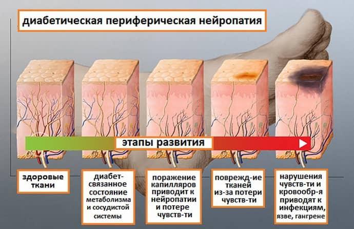лечение полинейропатии нижних конечностей народными средствами