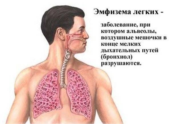 Свистящий кашель у ребенка — причины и чем лечить
