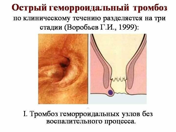 внутренний геморрой у мужчин симптомы