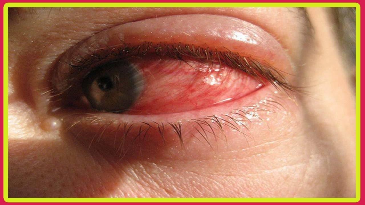 Герпетический конъюнктивит - симптомы болезни, профилактика и лечение герпетического конъюнктивита, причины заболевания и его диагностика на eurolab