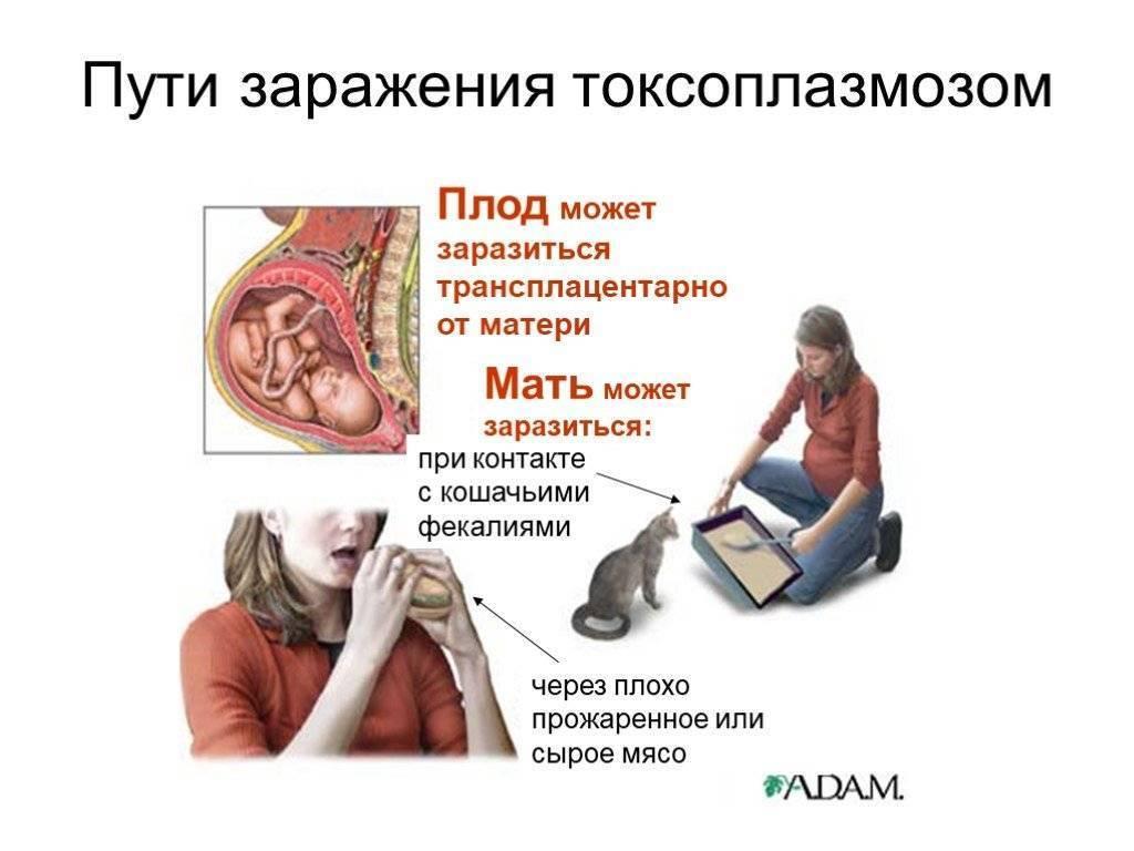 Токсоплазмоз: симптомы у людей и методы лечения