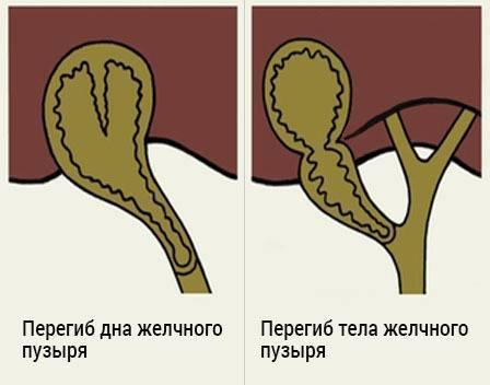Как определить и лечить изгиб желчного пузыря в области шейки