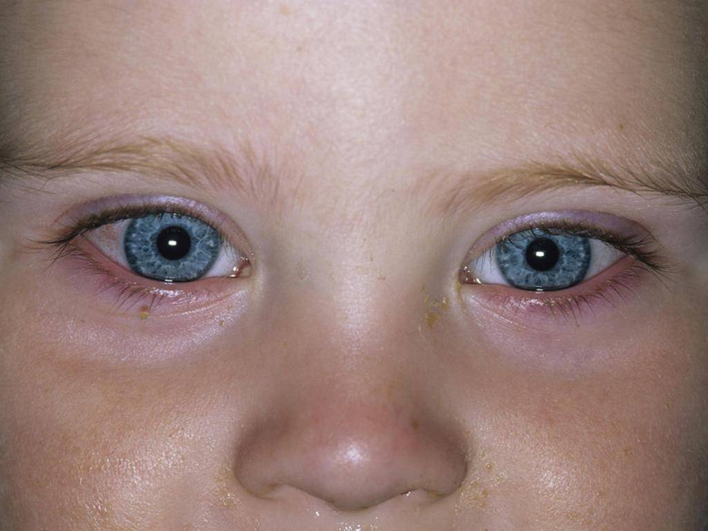У ребенка температура при конъюктивите