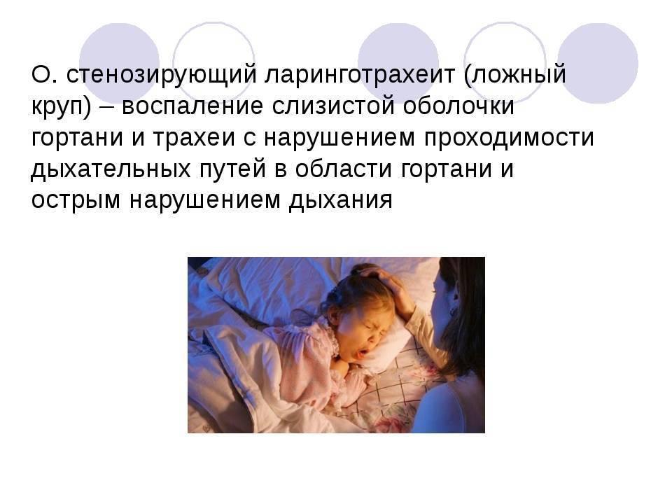 Симптомы и лечение ларинготрахеита у взрослых и детей в домашних условиях