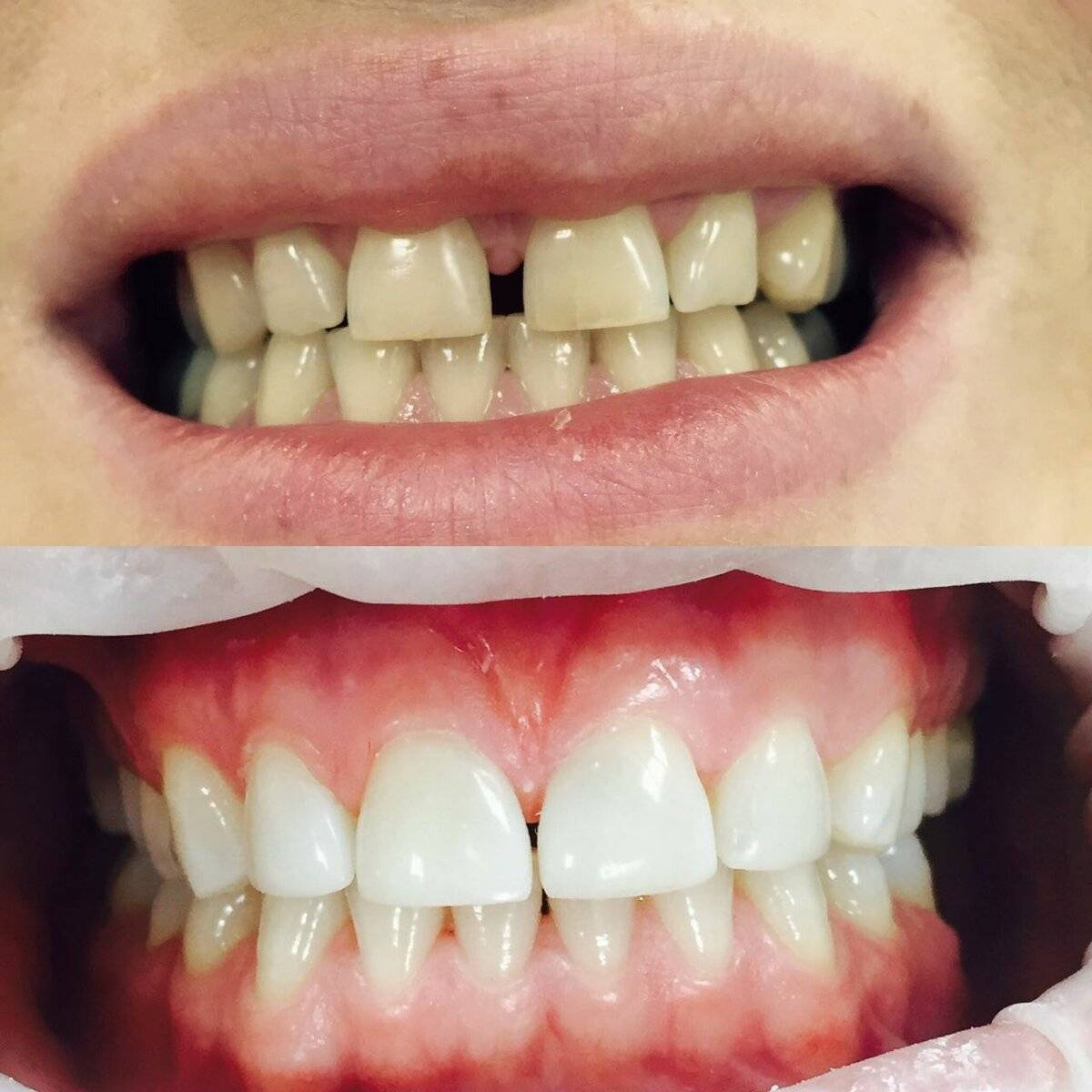 Художественная реставрация передних зубов — фото эстетического восстановления фронтальных резцов