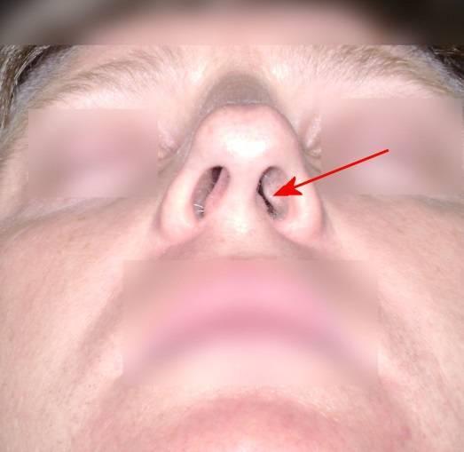Боль с одной стороны носа