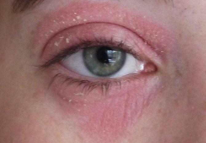 Краснеют и болят глаза после умывания. покраснение глаз после воды. почему краснеют глаза после душа и бани: симптомы, причины