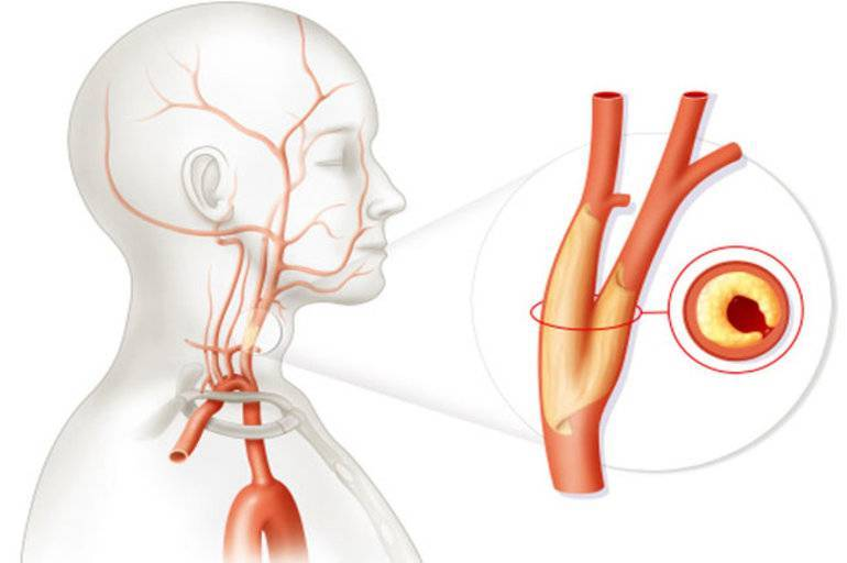 атеросклероз брахиоцефальных артерий со стенозом