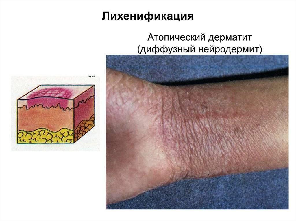 аутоиммунный атопический дерматит