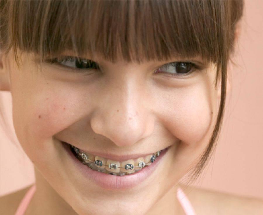 В чем причина, если не ровно растут зубы?