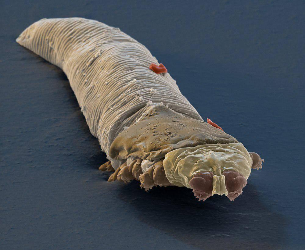 подкожные паразиты у человека симптомы