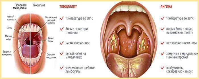 Ангина – симптомы всех видов и форм болезни