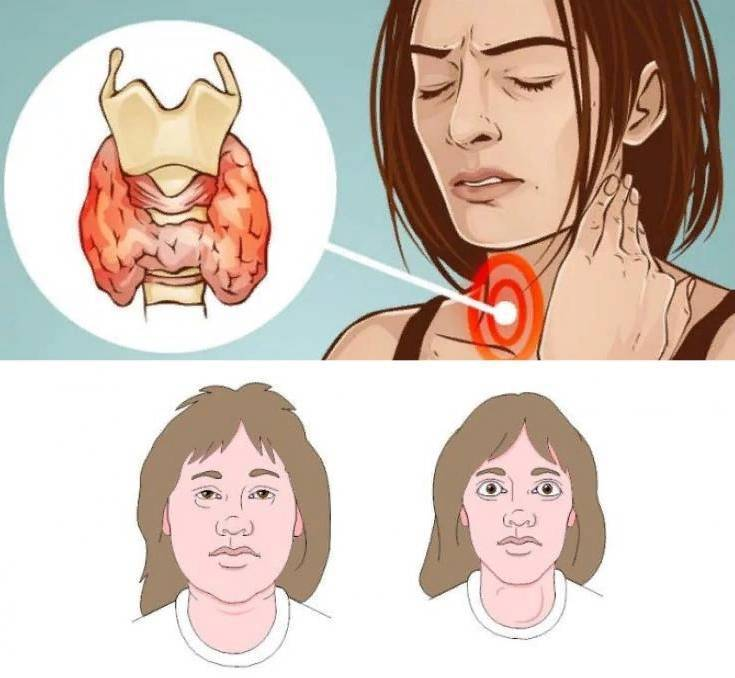 щитовидная железа маленького размера