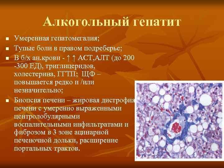 алкогольный гепатит лечение