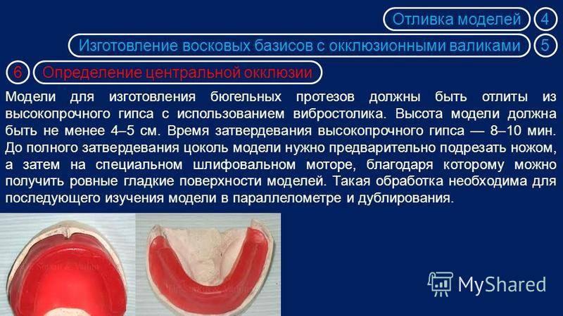 """Презентация на тему: """"клинико-лабораторные этапы изготовления литых бюгельных протезов с кламмерной фиксацией"""". скачать бесплатно и без регистрации."""