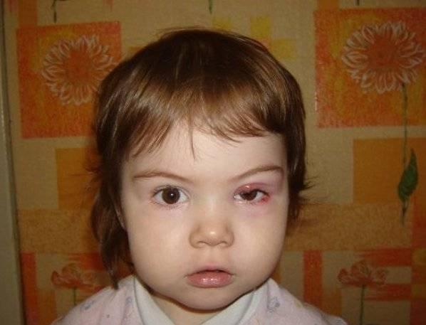 у ребенка ячмень на глазу что делать комаровский