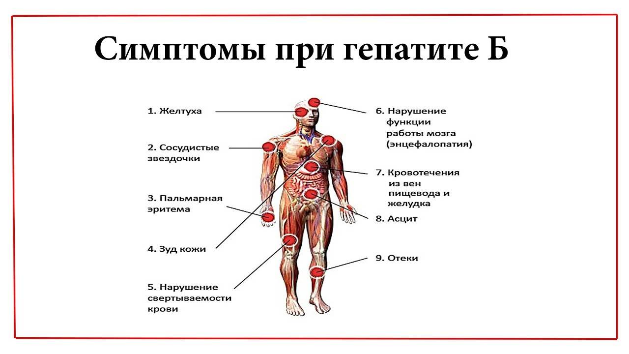 Симптомы и признаки гепатита а у мужчин на ранних стадиях, лечение и профилактика