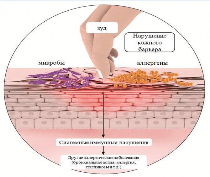 механический дерматит