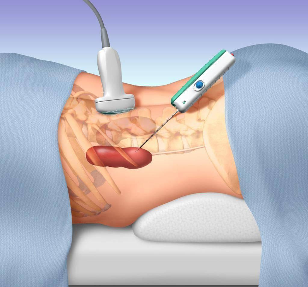 биопсия печени как делают
