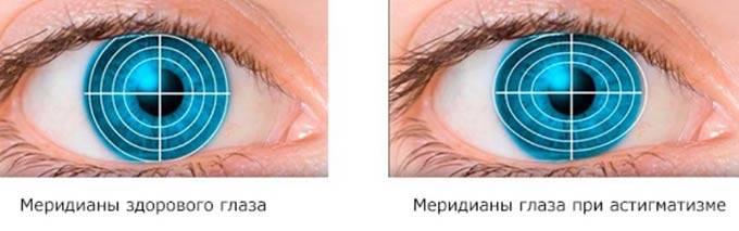 Лечение астигматизма у детей и взрослых, методики коррекции зрения