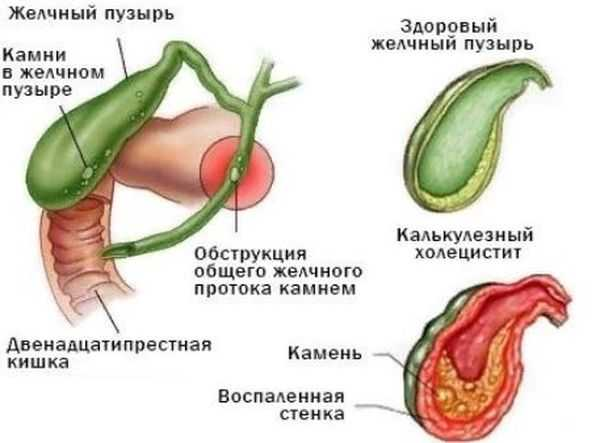 Камни в желчном пузыре при беременности