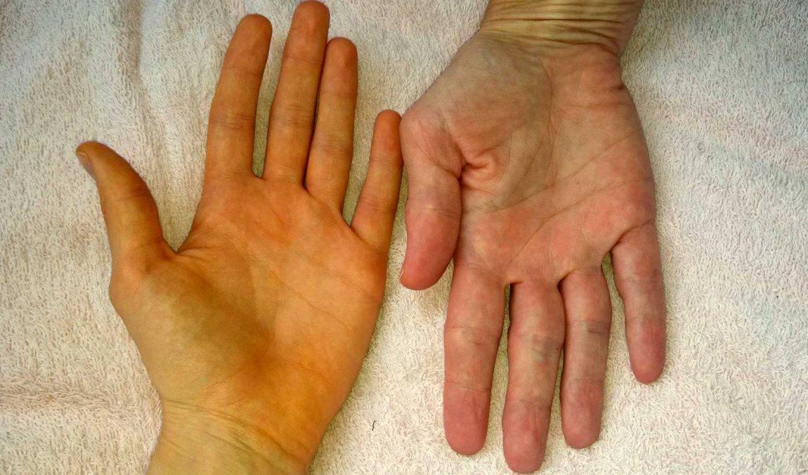 гепатит с симптомы у детей