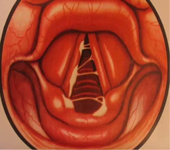 Что делать при ожоге слизистой горла?