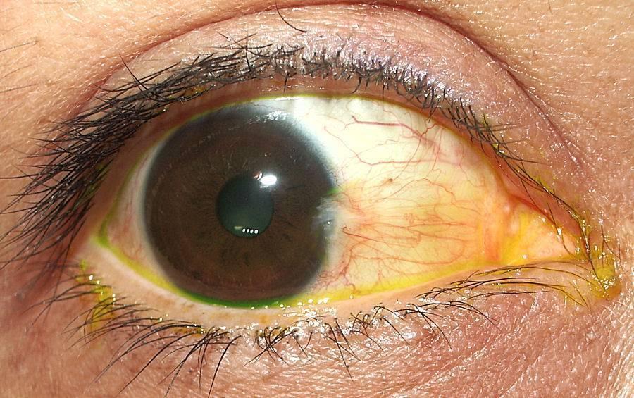птеригий глаза