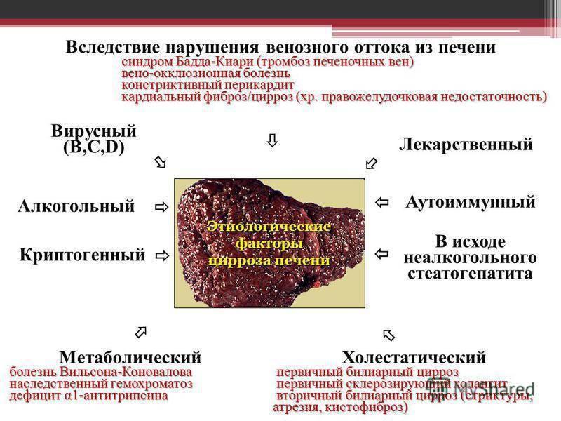 лечение цирроза