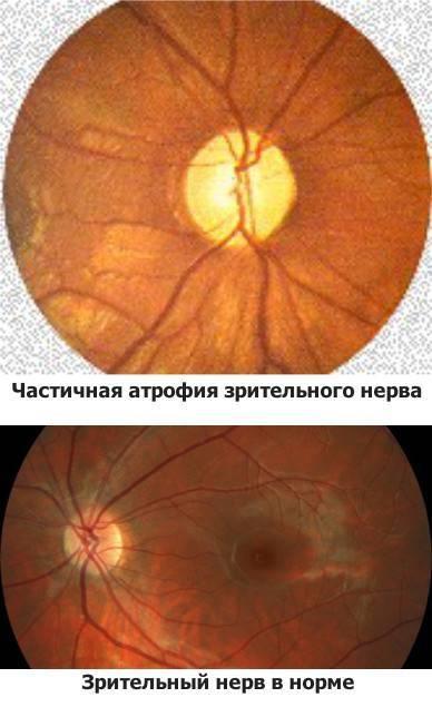 Лечение частичной атрофии зрительного нерва у детей: как лечить народными средствами и стволовыми клетками, прогноз восстановления