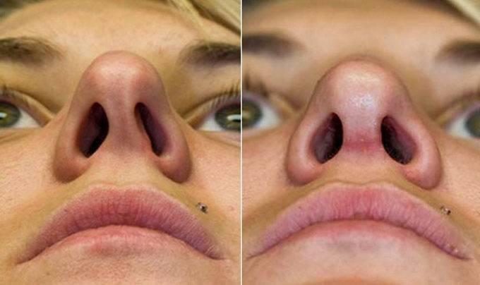 выравнивание носа без операции