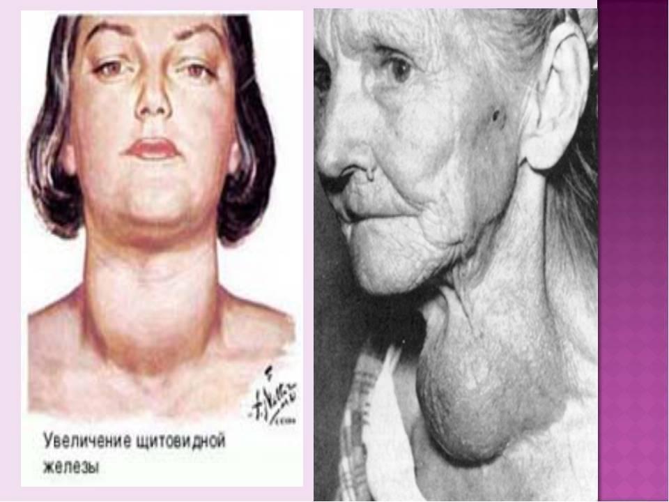 Увеличена щитовидка у девочки 12 лет | про щитовидку