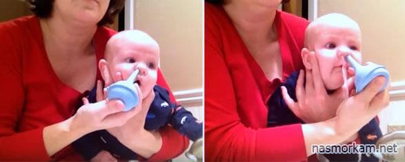 чем промыть нос грудному ребенку