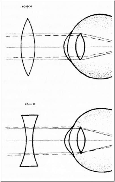 Выбираем линзы при близорукости: основные правила