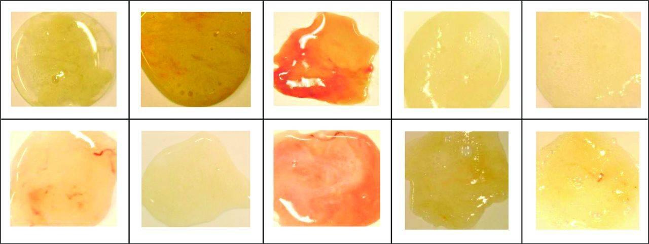 почему из носа течет желтая жидкость