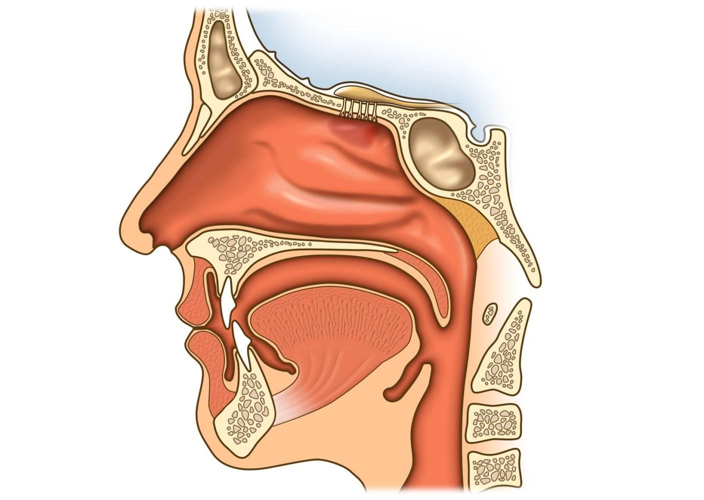 Анемизация слизистой носа при кровотечениях: суть, техника проведения | food and health