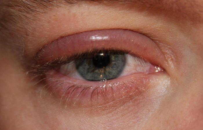 Грибок глаз лечение симптомы и лечение