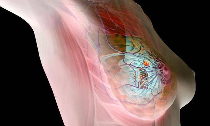 Фиброзно-кистозная мастопатия молочных желез: что это, симптомы и лечение
