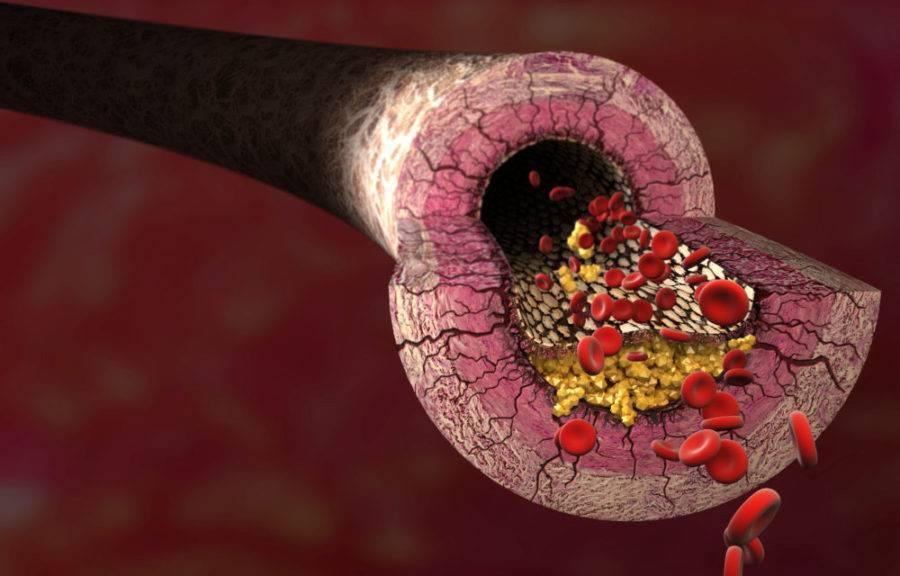 холестериновые бляшки в сосудах шеи