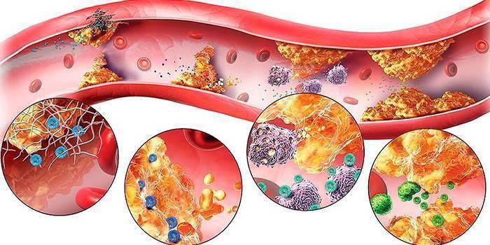 Признаки и лечение атеросклероза сосудов головы и шеи