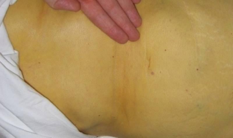 Болезни печени: первые симптомы