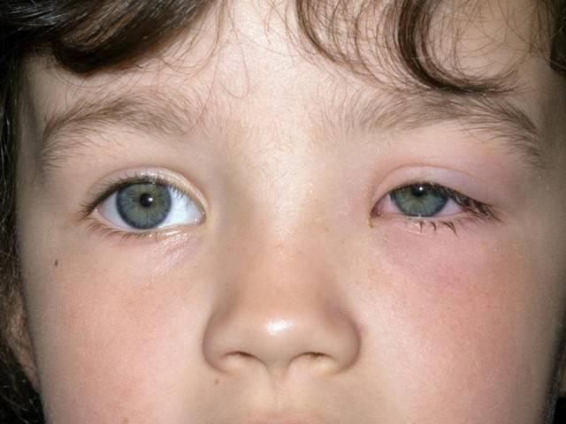 Гнойный конъюнктивит у детей: лечение глаз, как лечить при остром процессе