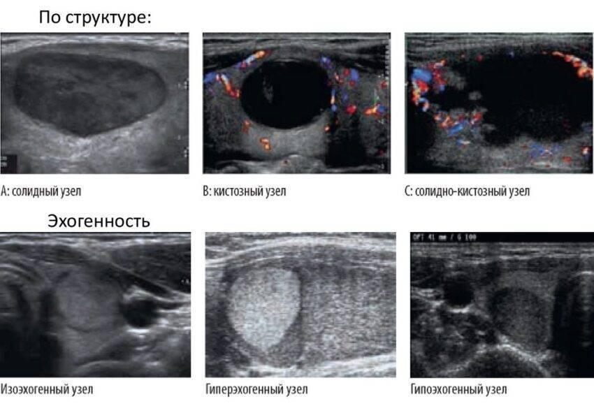 анэхогенные включения в щитовидной железе