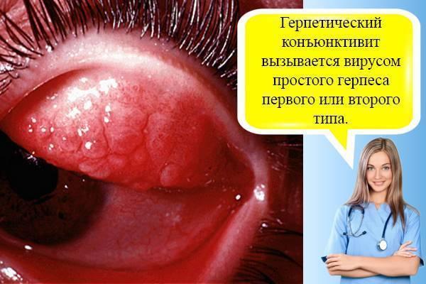 Диагностика и лечение герпетического конъюнктивита.