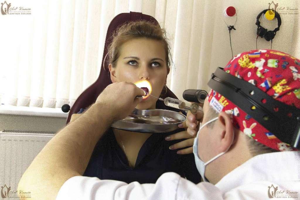 Радиоволновая лакунотомия при хроническом тонзиллите